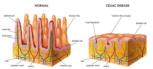 villi intestinali, celialchia