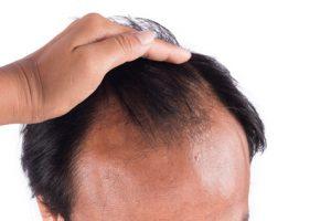 alopecia maschile
