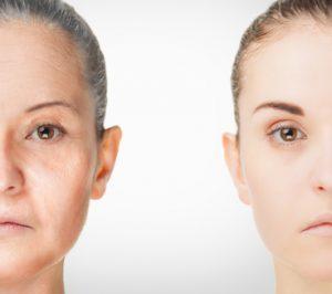 invecchiamento precoce viso donna
