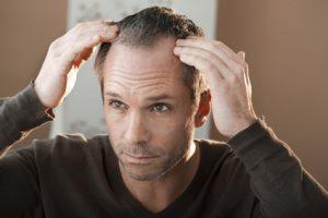 uomo massaggia capelli diradati