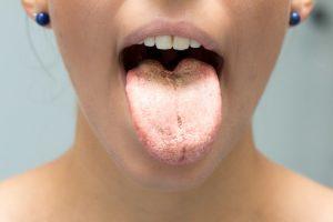 candida in bocca