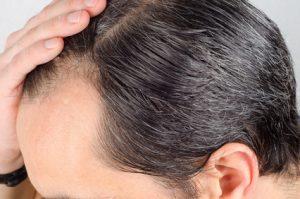 caduta di capelli nell'uomo