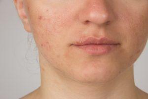 herpes faccia ragazza