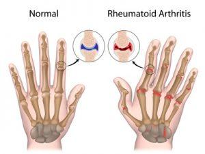 figura mani con artrite reumatoide