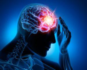 disfunzione cognitiva nel cervello dell'uomo