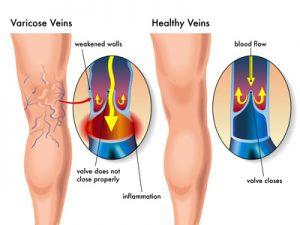 vene varicose nelle gambe