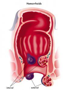 la formazione di emorroidi