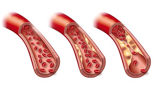 he shou riduce il colesterolo nelle parei arteriose